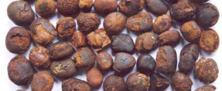 Udalenie kamnej v zhelchnom puzyre