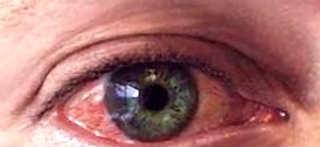 Питание и продукты для улучшения зрения_глаза
