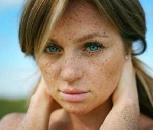 Пигментация кожи на лице_причины