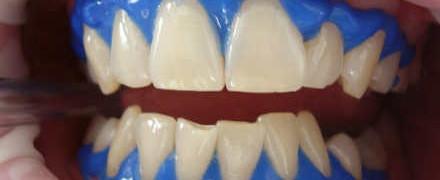 Способы отбеливания зубов_и методы
